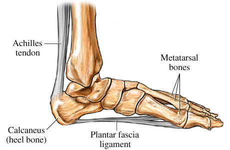 plantar fasciitis walking