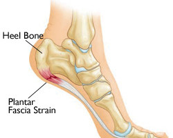 Plantar Fascia injury