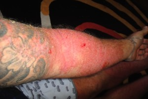 Simon Fitzgerald skin  condition arm